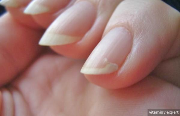 Портятся ногти