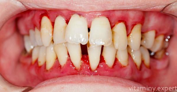 Зубы больного цингой